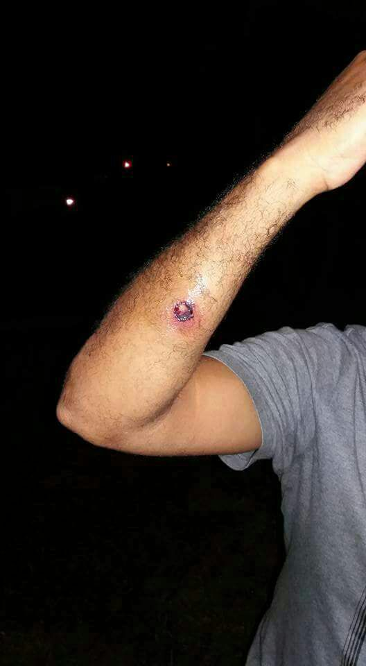 A person was shot with a rubber bullet during the North West protests.
