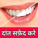 Teeth Whitening Tips - In Hindi icon