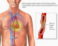 Suplemen Herbal Untuk Penderita Sindroma Darah Kental