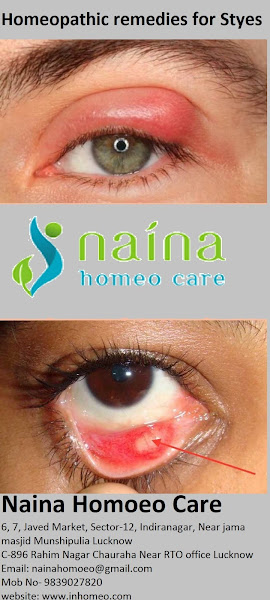Naina Homoeo Care