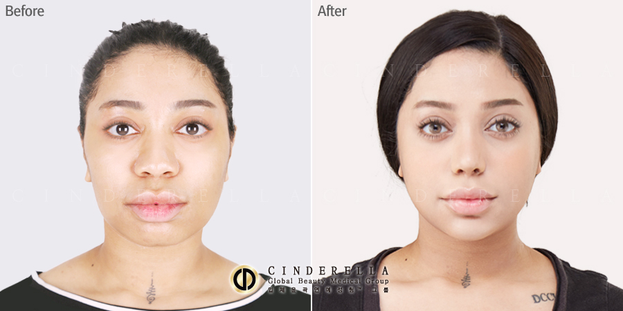 This Is The Most Dangerous Plastic Surgery Procedure That Idols Get