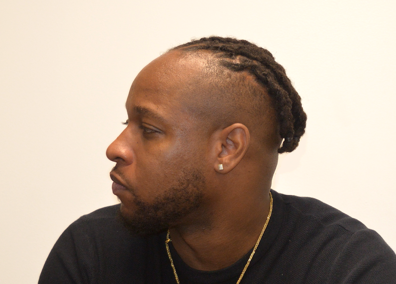 sides and back of head shaven with high top locs hair style