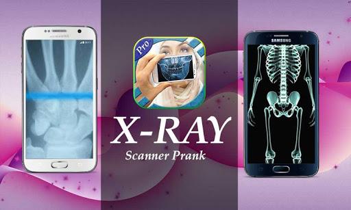 Xray camera Scanner Prank
