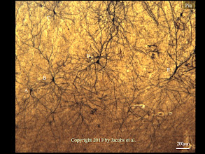 "Photo: Figure 4: A low magnification view of the frontal cortex in the elephant. Remarkable in this photomicrograph is the variety of spiny neuron types: (A) an inverted pyramidal neuron; (B) a ""matriarch"" neuron (see Figure 6); (C) a smaller, superficial pyramidal neuron; (D) a magnopyramidal neuron; and (E) a fork neuron. This is a greater diversity of neurons than is typically noted in primates or rodents, but appears to be typical of elephants. Note also the large dendritic spread of many of these neurons."
