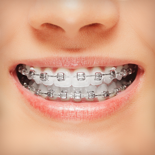 Braces - Apps on Google Play