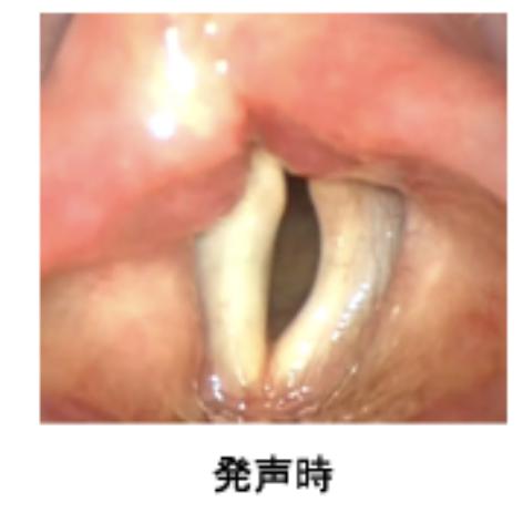 左に呼吸時の声帯、右に発生時の声帯の画像。  声帯を上から見下ろす形で、気管が見える。