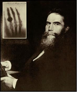 Röentgen e a primeira radiografia realizada no mundo