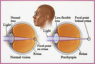 Obat Herbal Mata Presbiopia Pada Lansia
