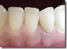 fratura de dente