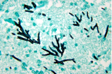 Photo: Aspergillus - septate hyphae that branch at 45 degrees
