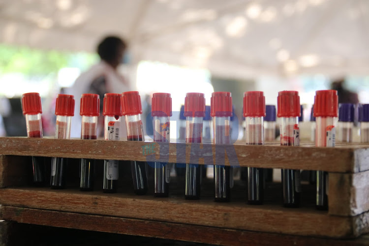 Blood samples displayed A health worker displayed during a blood donating exercise held by Kenya National Blood Transfusion Service in partnership with the coalition for blood Africa (CoBA) at Uhuru Park Nairobi on Monday, 8 March. /WILFRED NYANGARESI