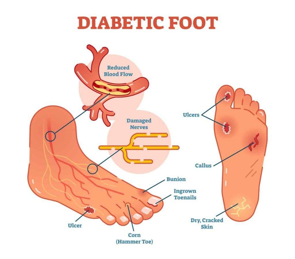 Diabetische voetverzorging