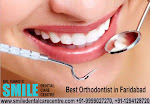 Best Orthodontist to Get Braces Treatment in Faridabad