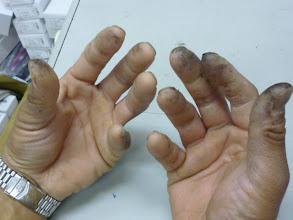Photo: もみじの様な しなやかな手は、真っ黒! ・・・皆様は、上手に取り外してください。