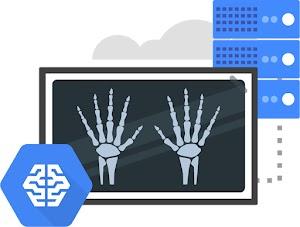 示意圖,圖中有與雲端伺服器堆疊相連結的手部 X 光片,還有 Google AI/機器學習圖示