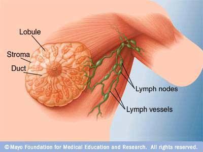 Pengobatan Herbal Kanker Payudara & Manfaat IZUMIO
