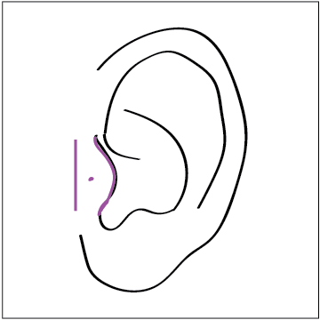 tragus mark 3.png