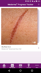 My Mederma- screenshot thumbnail