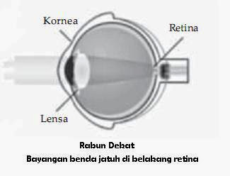 Vitamin Mata Untuk Hipermetropi