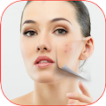 Download How To Remove Pimples APK for Laptop