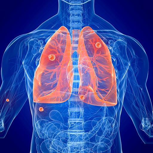 LungLive 2016 商業 App LOGO-硬是要APP
