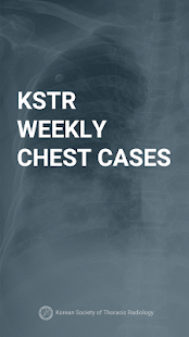 KSTR Weekly Chest Cases - náhled