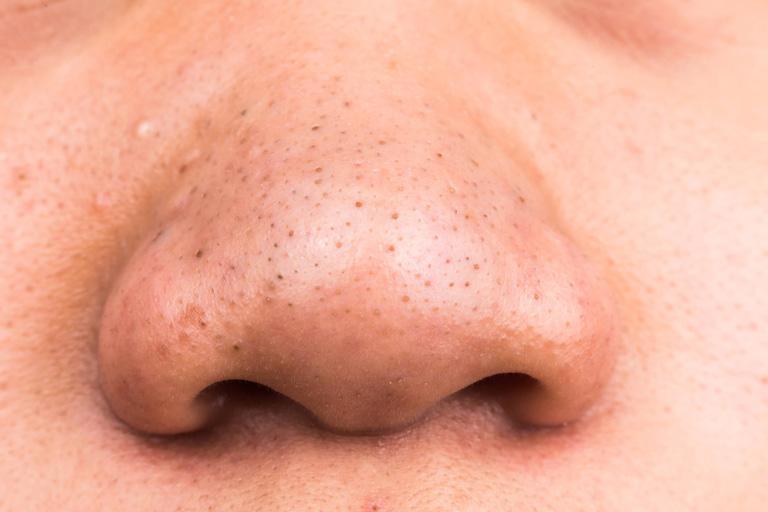 Mụn đầu đen: Nguyên nhân, biểu hiện và phương pháp điều trị hiệu quả cho da