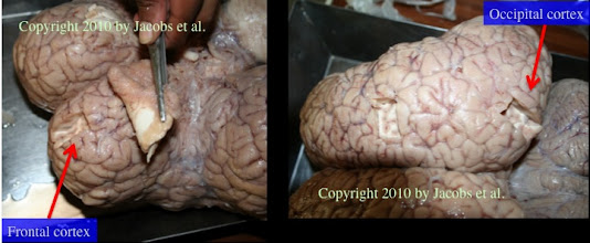 Photo: Figure 1: Two cortical regions of the elephant brain (~5,000g) were examined: inferior prefrontal lobe (on the left—note the large size of the olfactory bulb being retracted) and occipital lobe (on the right).