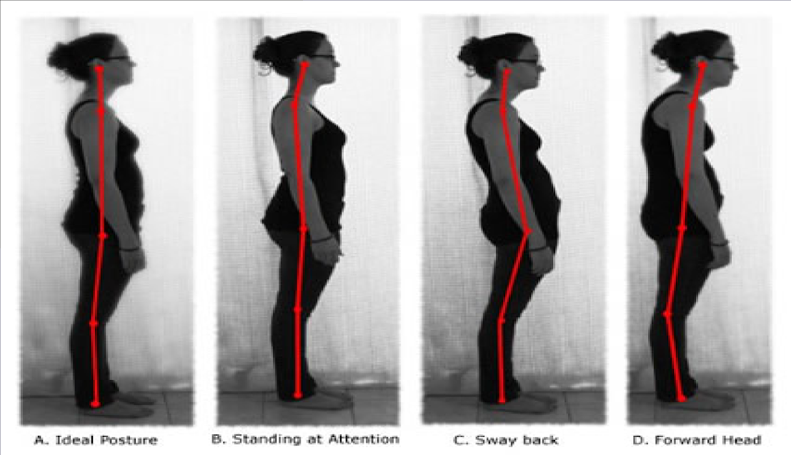 The Myth Of Bad Posture And Misconceptions About 'Correction'