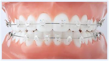 Chi phí niềng răng mắc cài sứ khoảng bao nhiêu ?