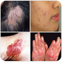 All Skin Diseases and Treatment- A to Z icon