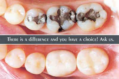 http://jphilipp.com/wp-content/uploads/2013/04/dental-fillings.jpg