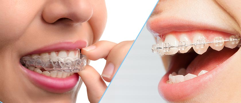 What is Invisalign Treatment and How Does it Work?
