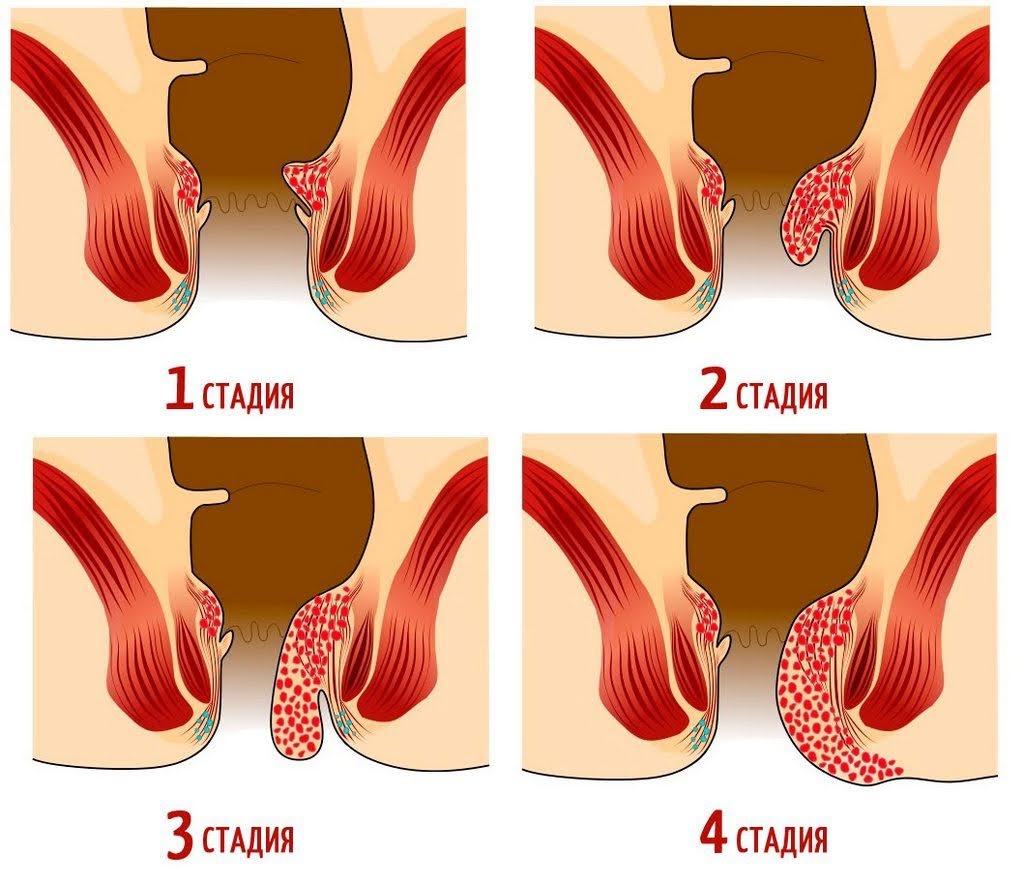 Геморрой стадии