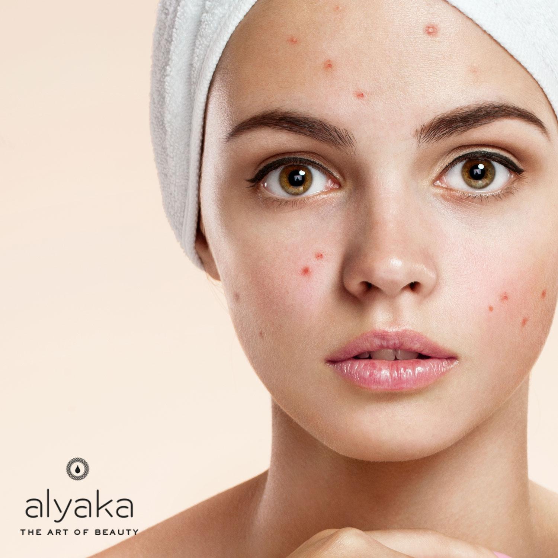 Acne-Prone Skin Type