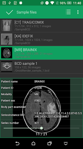 DroidRender - 3D DICOM viewer app (apk) free download for Android/PC
