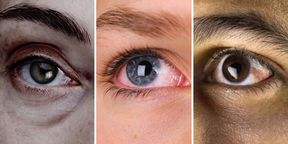 What the state of your eyes tell you about your health