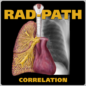 AIRP Rad-Path Correlation App