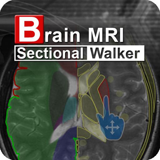 Brain MRI Sectional Wlker