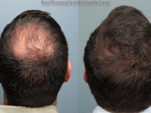 HAIR TRANSPLANTERS ™- Best Hair Transplant and Hair Loss