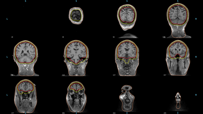 MRI scans of subjects