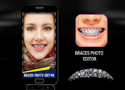 Braces Bretelles teeth both 2018 - náhled