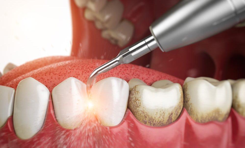 Зубной камень: причины образования и методы удаления ...