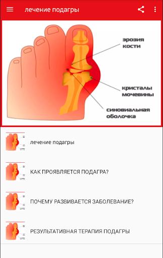 Методы лечения остеохондроз шейного отдела