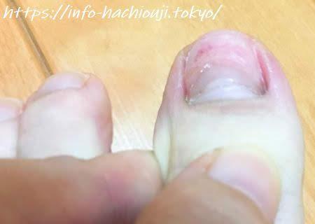 小指 ぶつけ 内出血 足 の た 足の指をぶつけた!すごく痛いけど骨折か見分ける方法ってあるの?