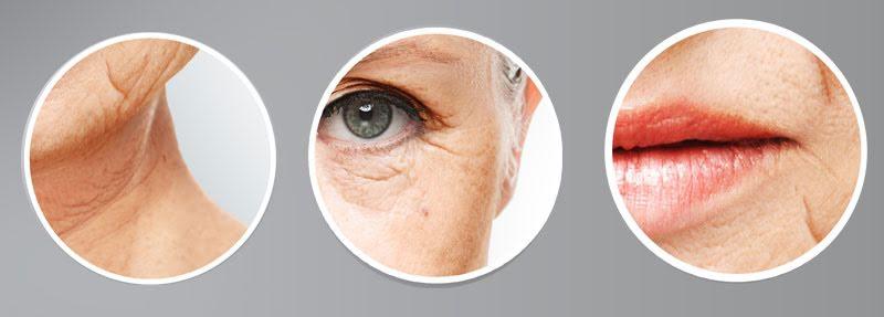 huden i ansiktet