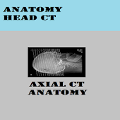 ANATOMY OF HEAD CT