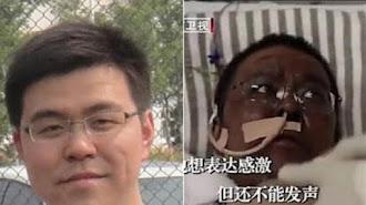 El médico fallecido Hu Weifeng, antes y después del efecto que le produjo la cloroquina.