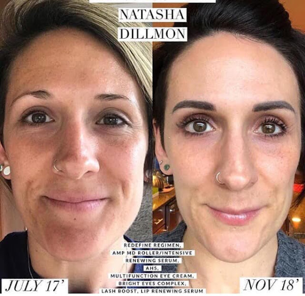 Rodan And Fields Roller Before And After - Field Wallpaper