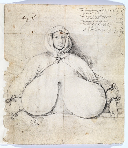 Woman with swollen breasts